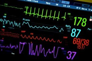 ICU Monitor